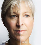 collagen-before-and-after