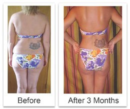Can b12 shots make you lose weight picture 1